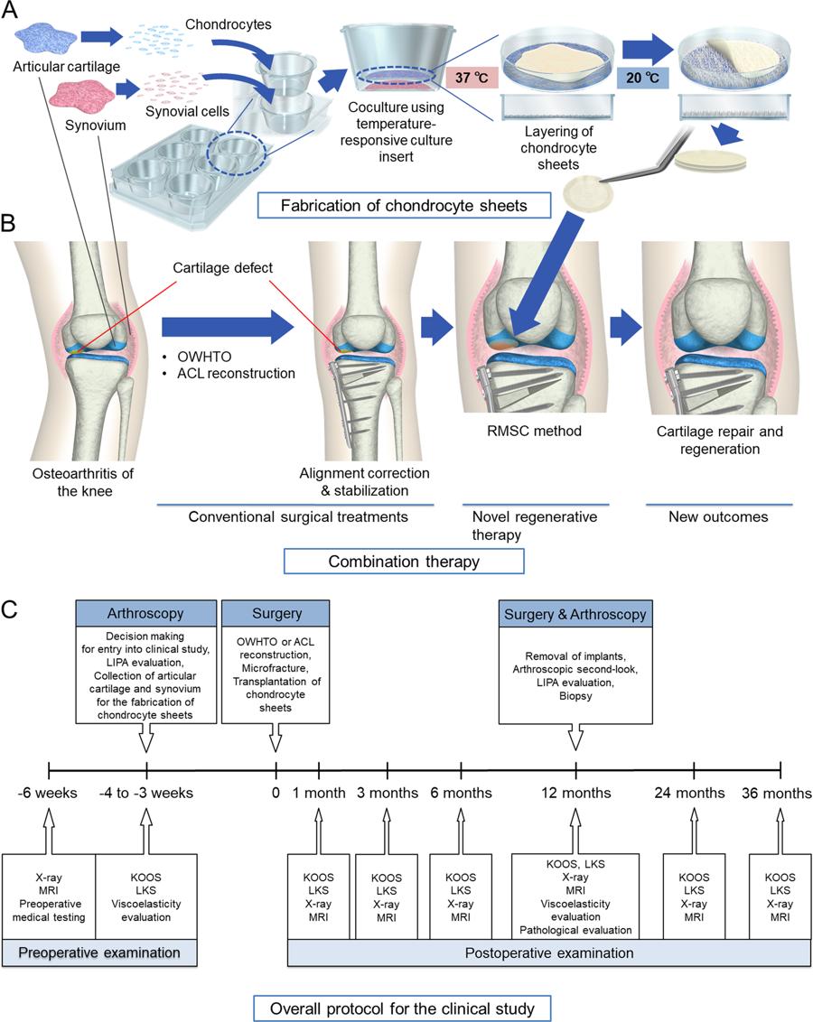 Terapia regenerativa para osteoartrite do joelho, com condrócitos produzido em laboratório.
